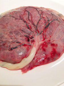 placenta capsuleren